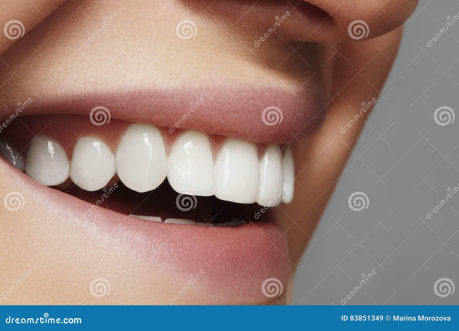 Schönes Lächeln mit dem Weiß werden von Zähnen Zahnmedizinisches Foto Makronahaufnahme des perfekten weiblichen Munds, lipscare r