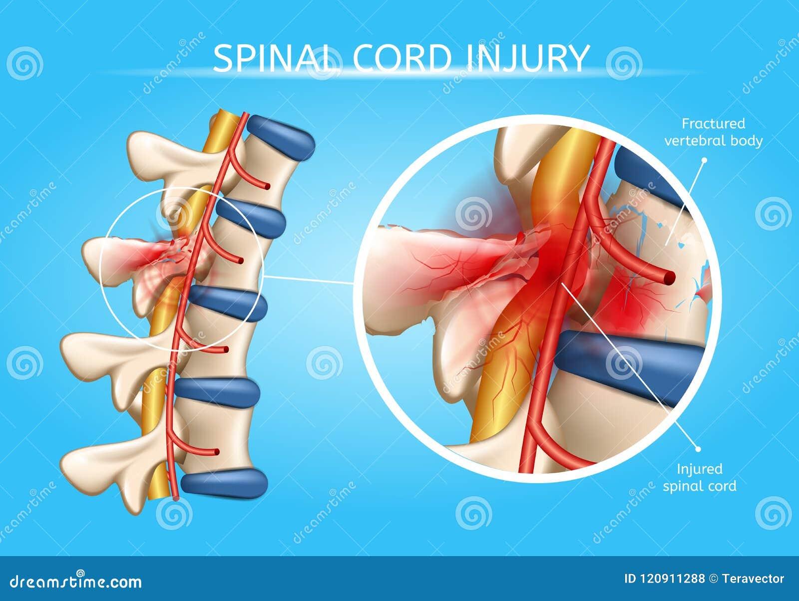 Schema anatomico di vettore di lesione umana del midollo spinale