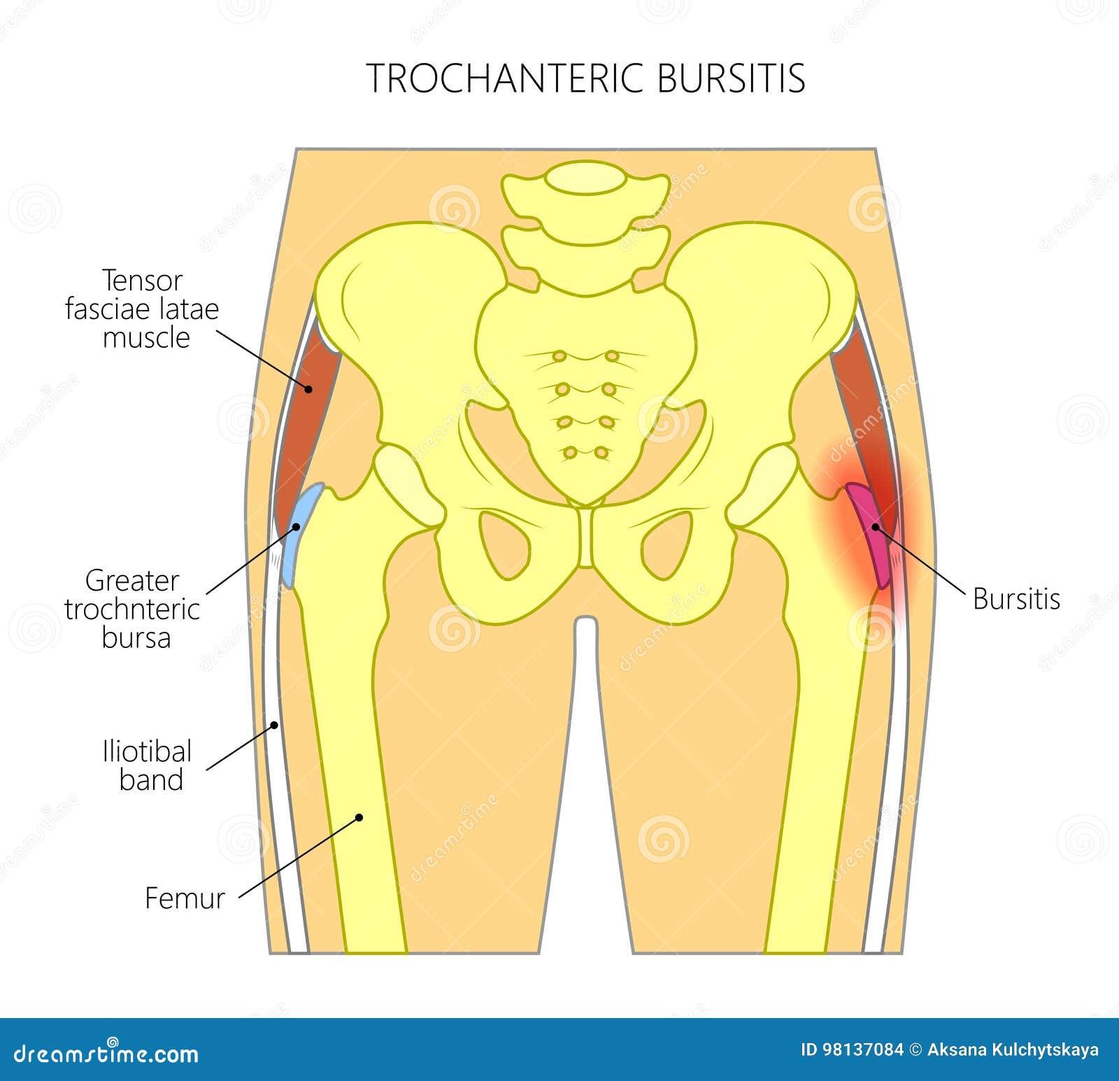 Schmerz Im Hüfte Joint_trochanteric Bursitis Vektor Abbildung ...