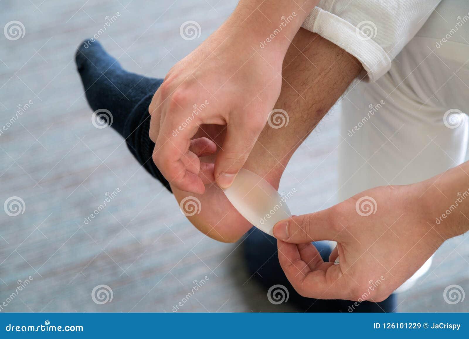 Schmerzliche Fersenwunde bemannt an die Füße, die durch neue Schuhe verursacht werden Bemannt Hände