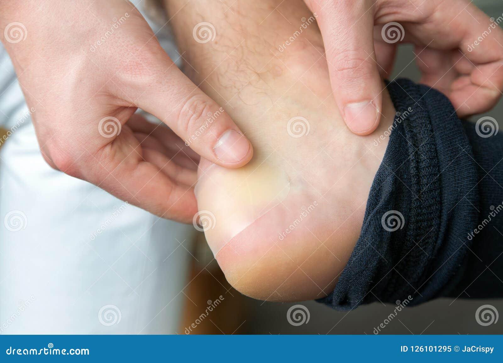 Schmerzliche Fersenwunde bemannt an die Füße, die durch neue Schuhe verursacht werden bemannt die Hände, die Gips auf schrecklich