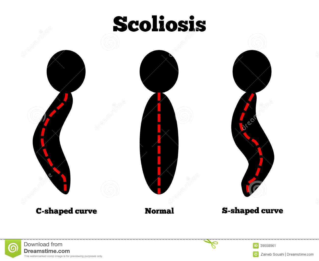 Different types of curvatures caused by scoliosis.