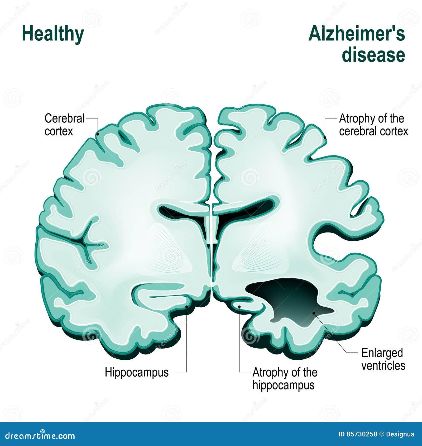 Seção transversal do cérebro humano Cérebro saudável comparado a Alzh