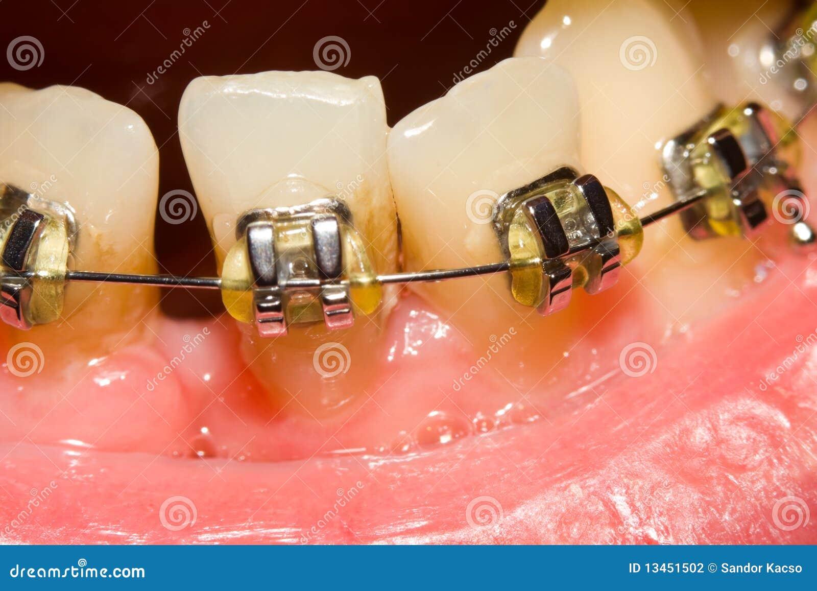 Se fermer de l intervalle avec les supports dentaires