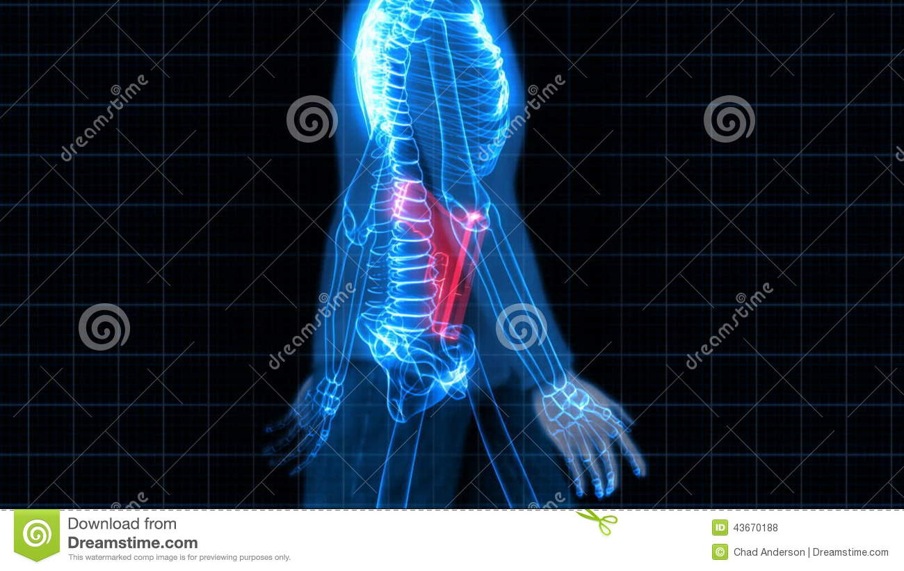 Security X-Ray Scanner - Man With Gun Stock Footage - Video of ...
