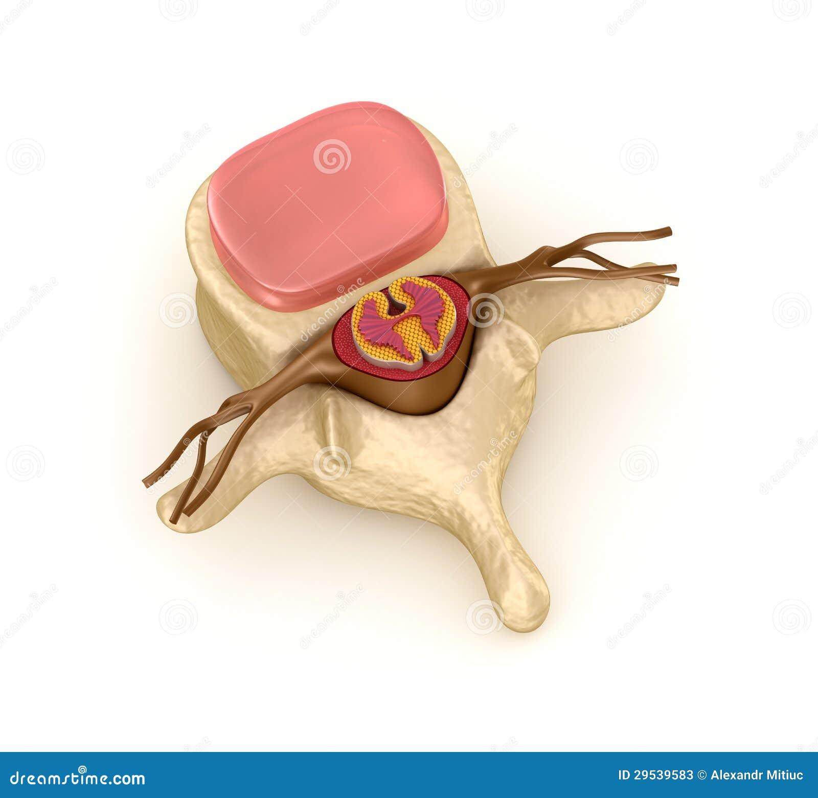 Segmento espinal com um disco