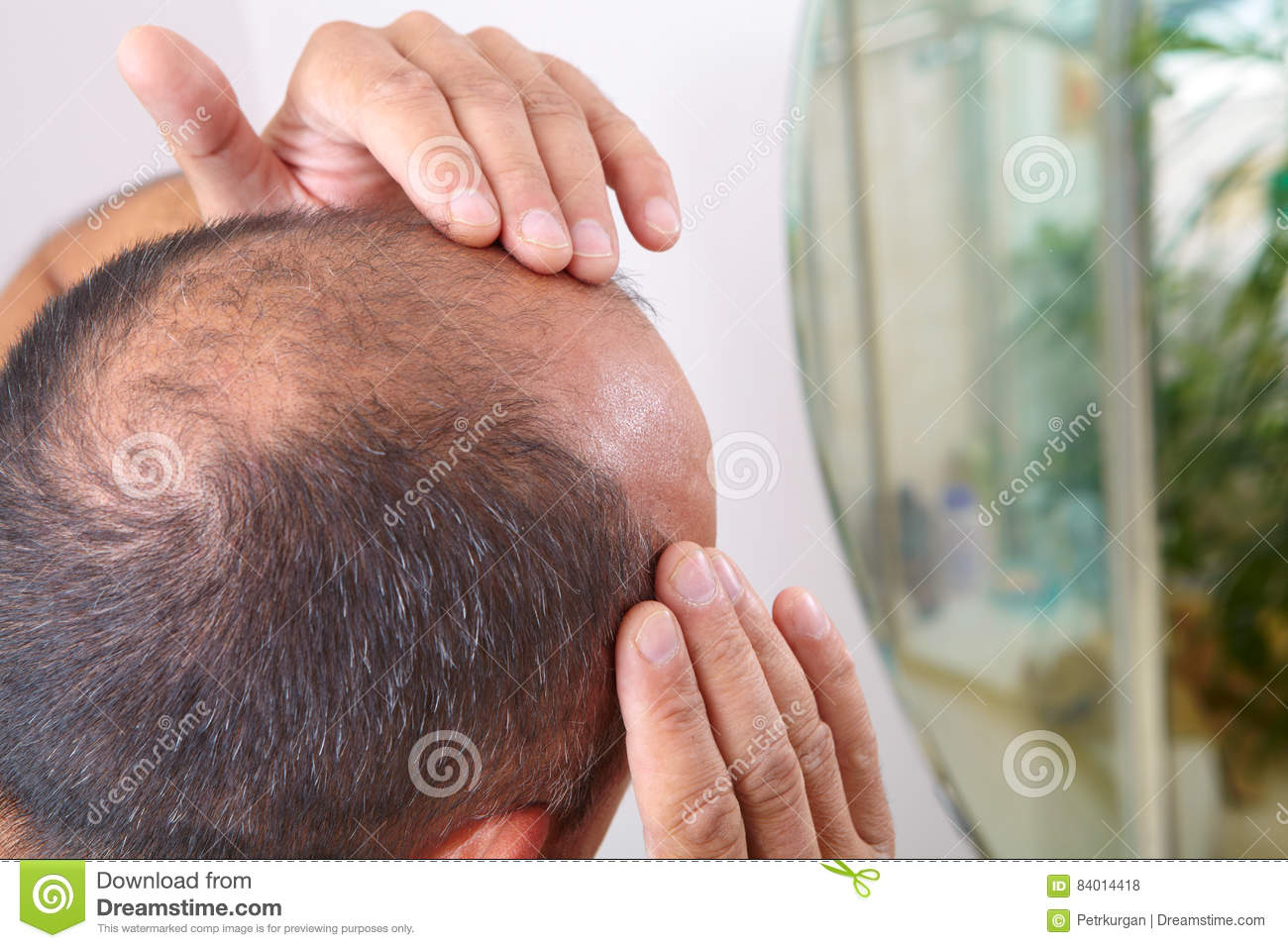 Senior Man And Hair Loss Issue Stock Photo - Image: 84014418