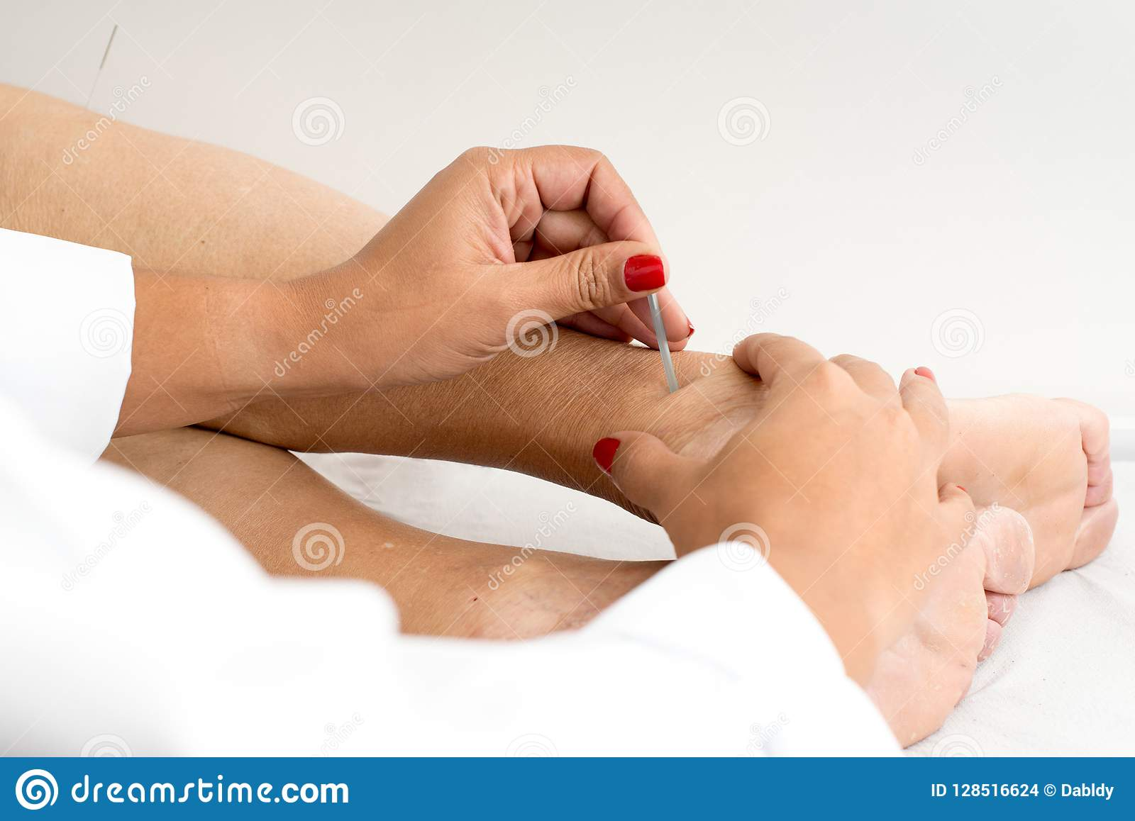Closeup Of Acupuncture Treatment On Foot Stock Photo ...