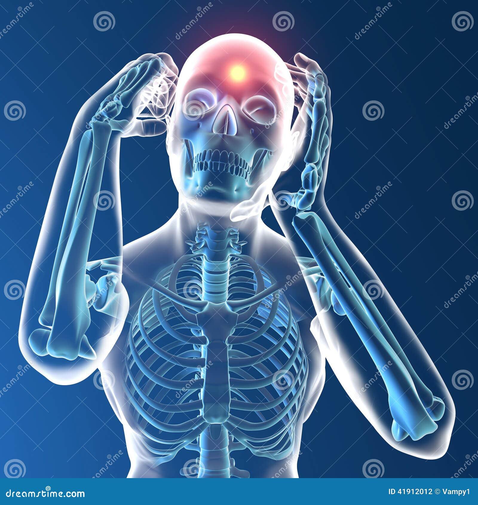 Ser humano de la radiografía con dolor de cabeza