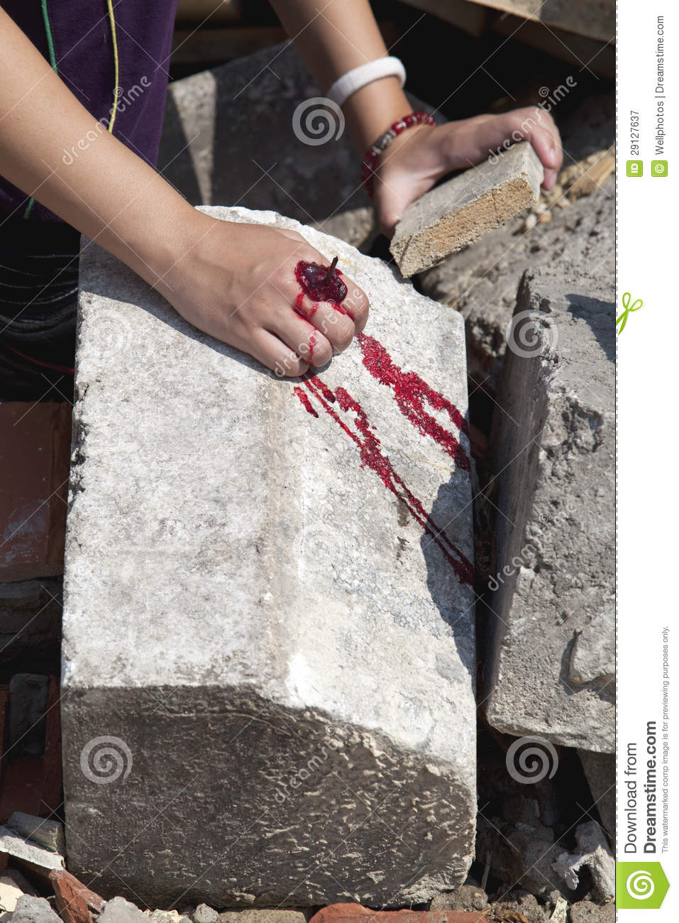 Serious Injury On A Girls Hand Royalty Free Stock Photography Image 29127637