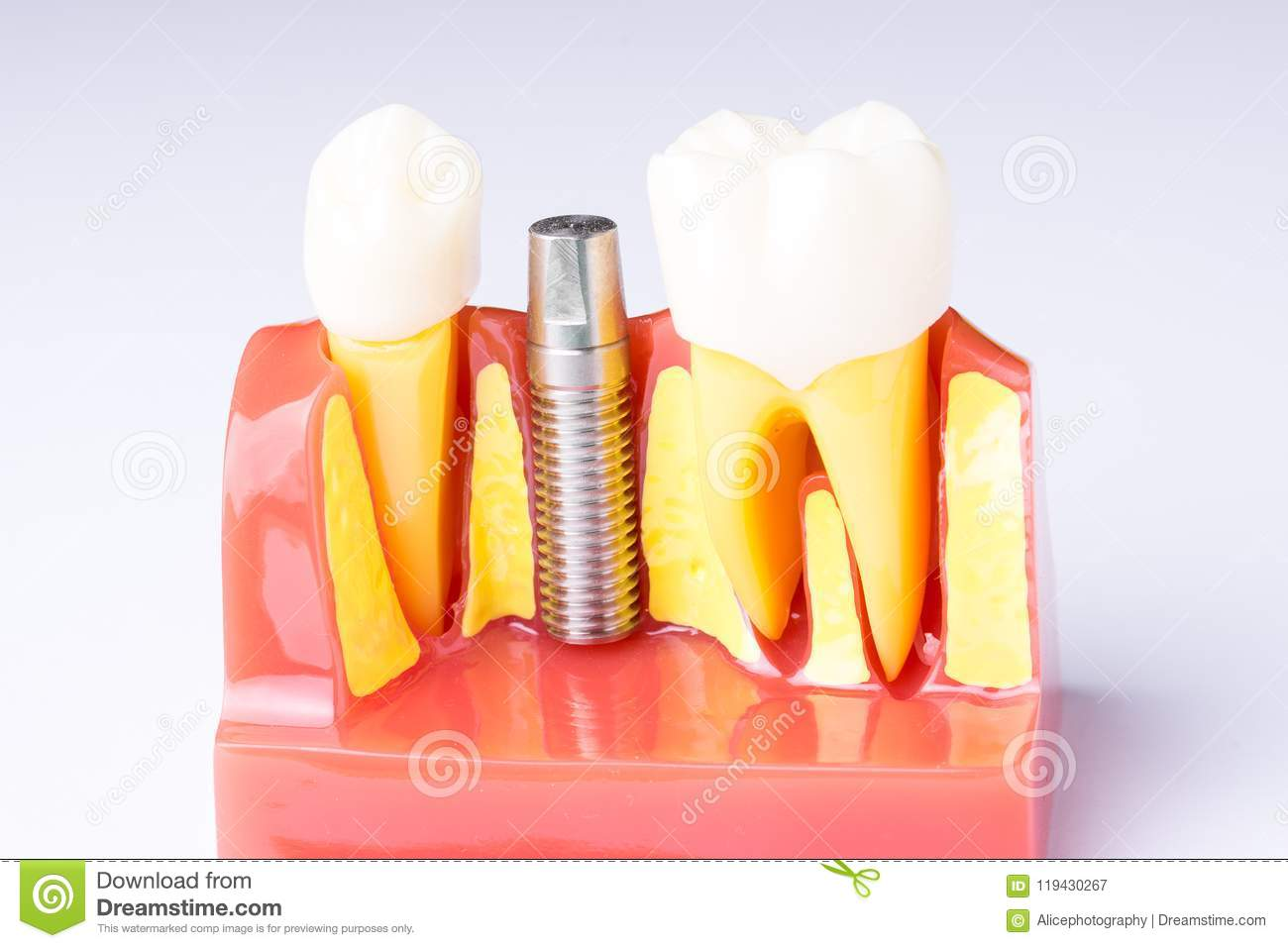 Set of Dentist`s equipment tools, denture showing implant