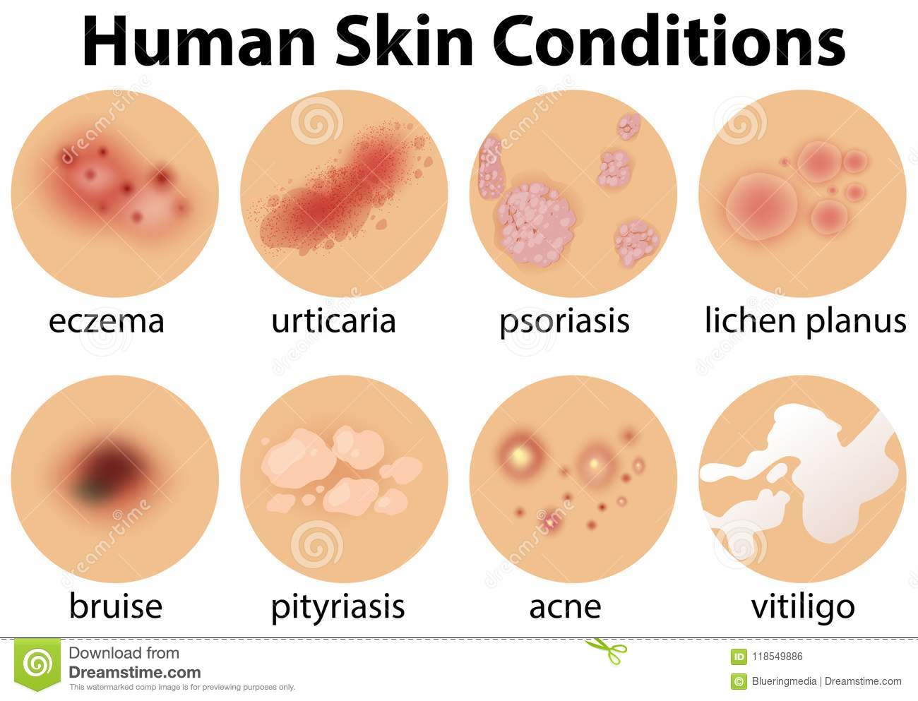 A Set Of Human Skin Conditions Stock Vector - Illustration ...