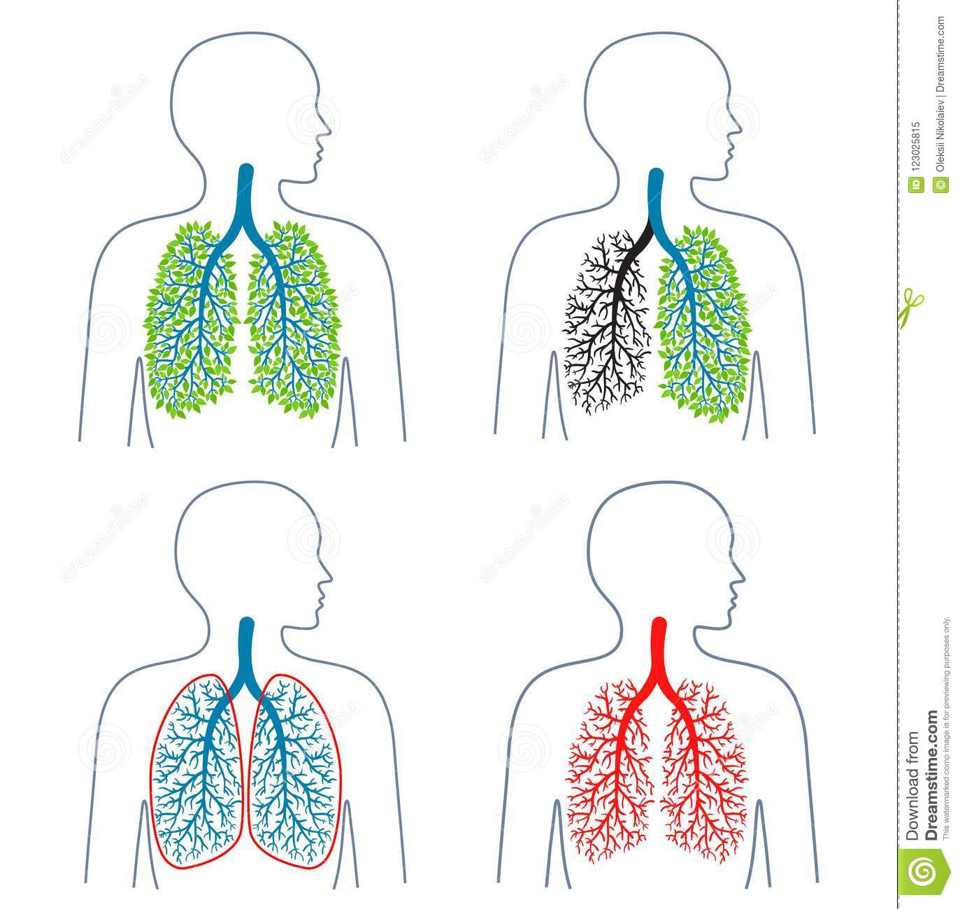 Set Of Illustrations Of Respiratory System Themetuberculosis Lung