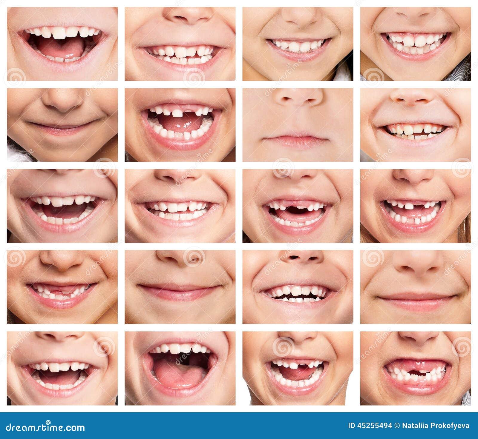 perfect smile veneers купить в железнодорожном