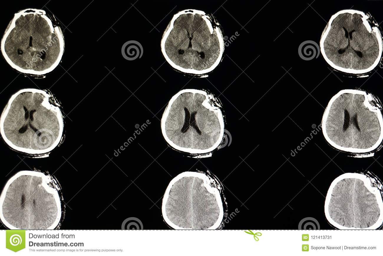 Severe Depression Fracture Of A Skull Stock Image - Image ...