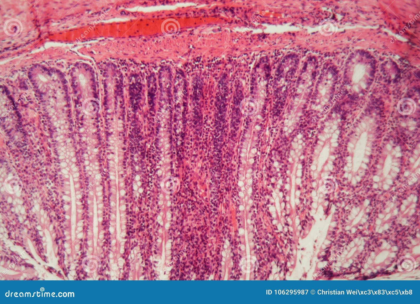 Sezione di un epitelio ciliato del cane