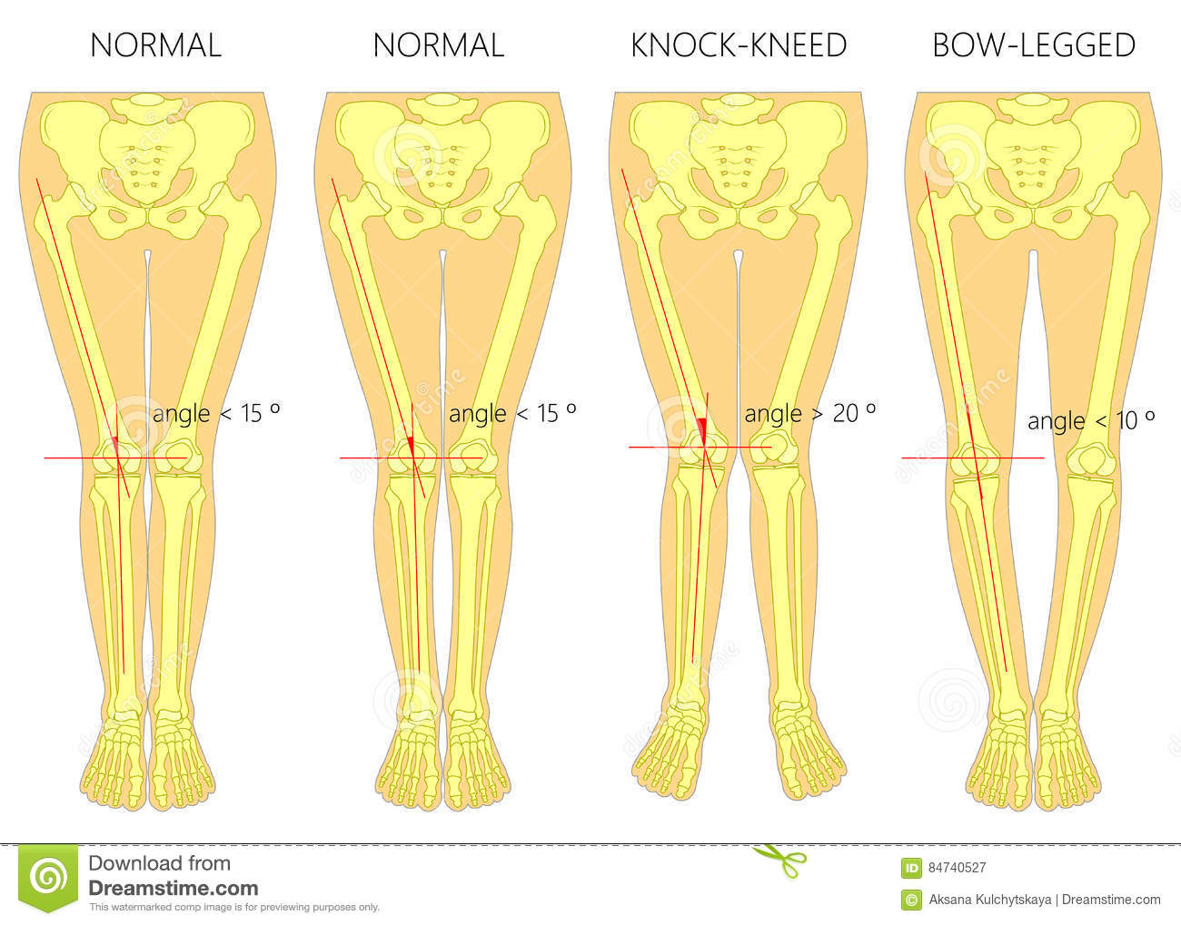 Rickets on osteomalacia diagram