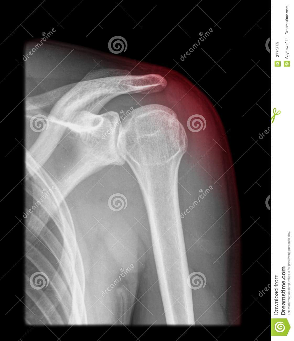 X Ray Radiation >> Shoulder pain stock image. Image of people, black, lung ...