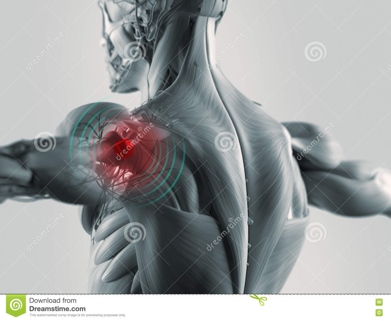 Shoulder Pain Illustration Stock Image Image Of Cuff 67626973