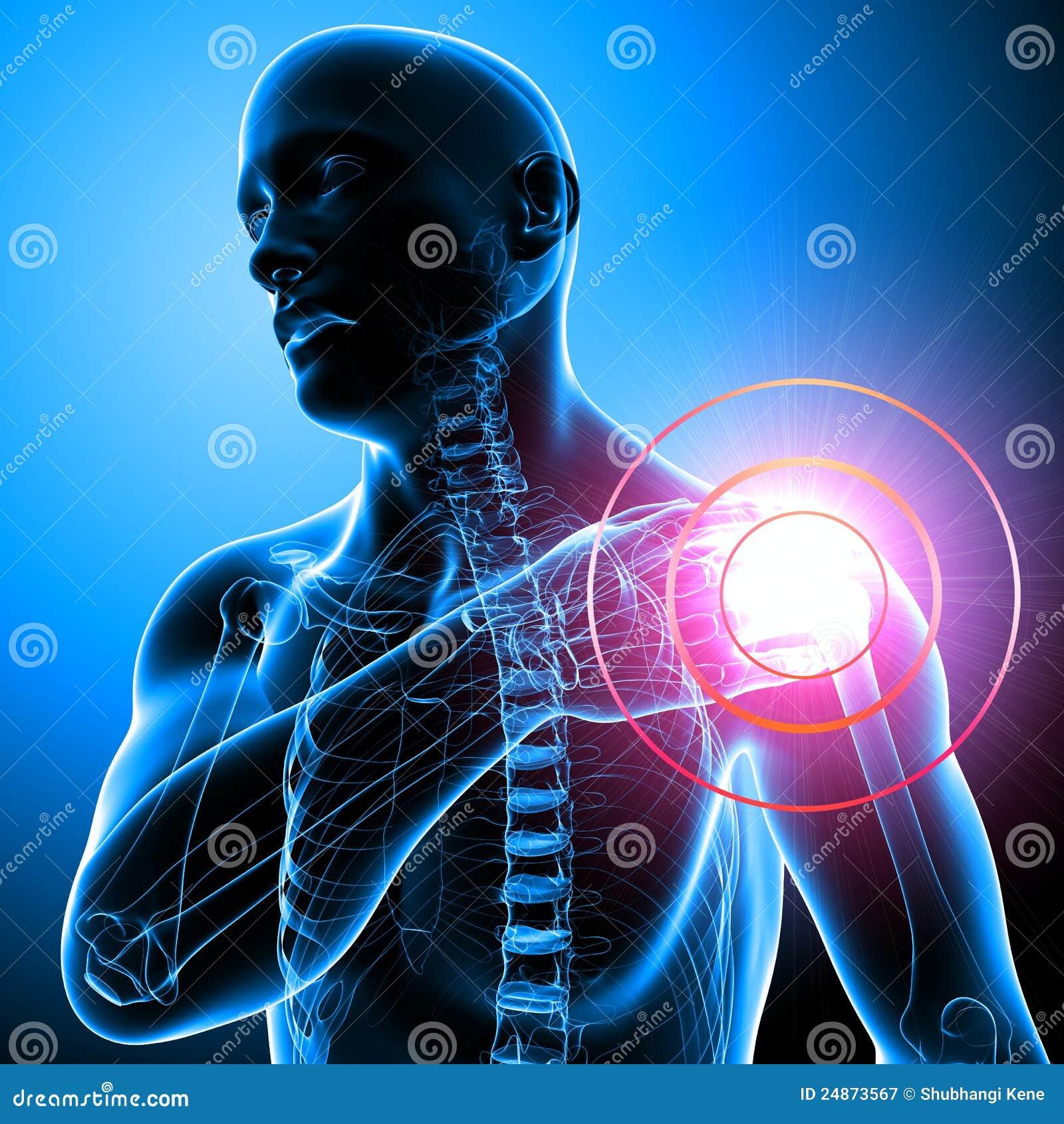 Shoulder Pain Of Male In Blue Stock Illustration - Illustration of ...