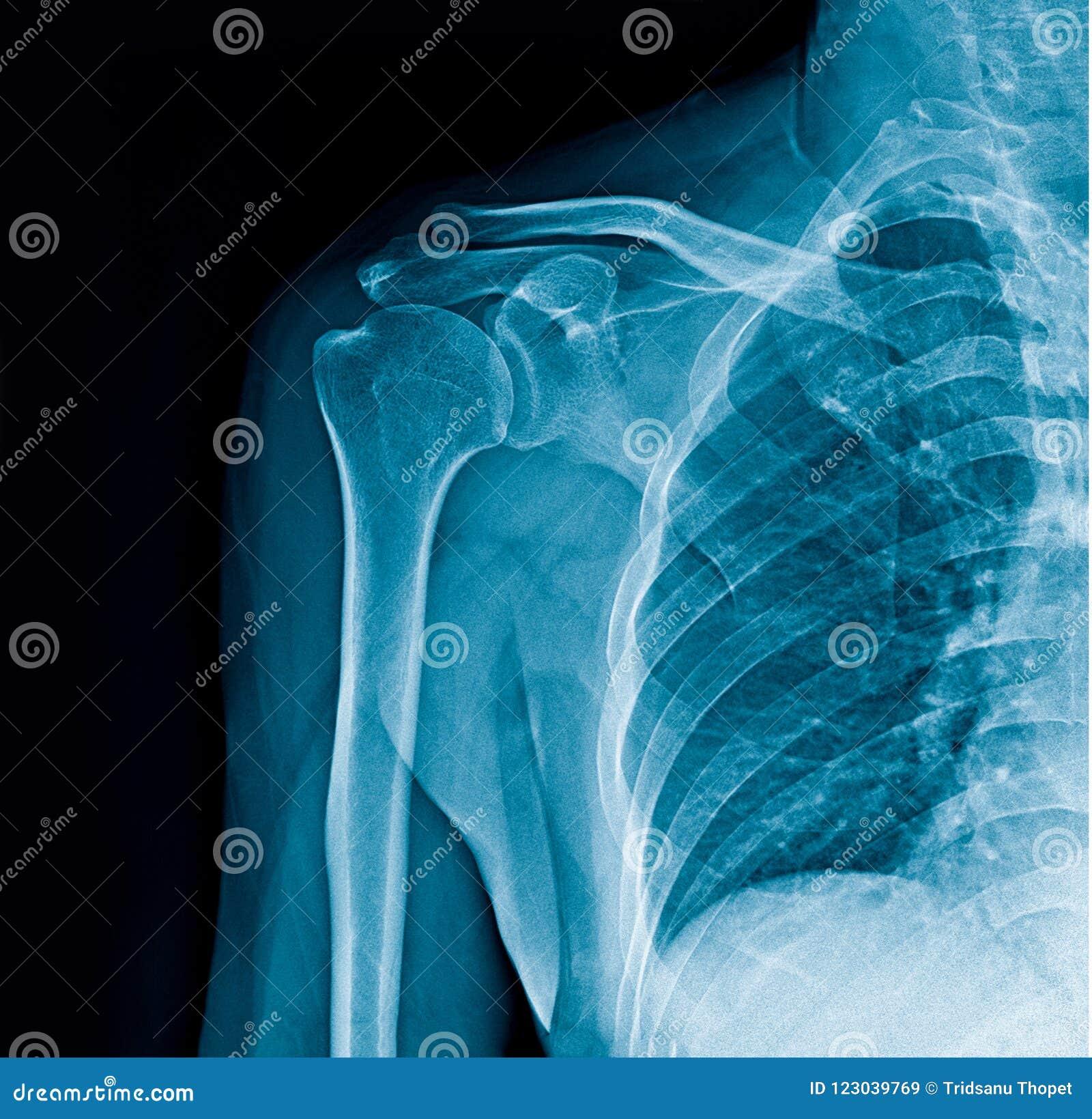Shoulder x-ray banner, shoulder x-ray on black background