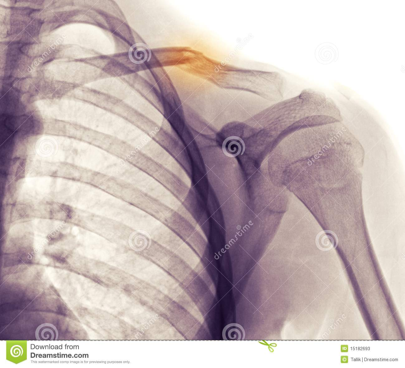 Shoulder X-ray, Clavicle (collarbone) Fracture Stock Photos - Image ...