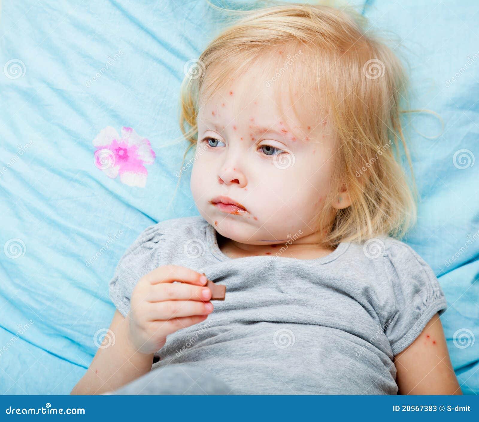 Sick girl is eating chocolate