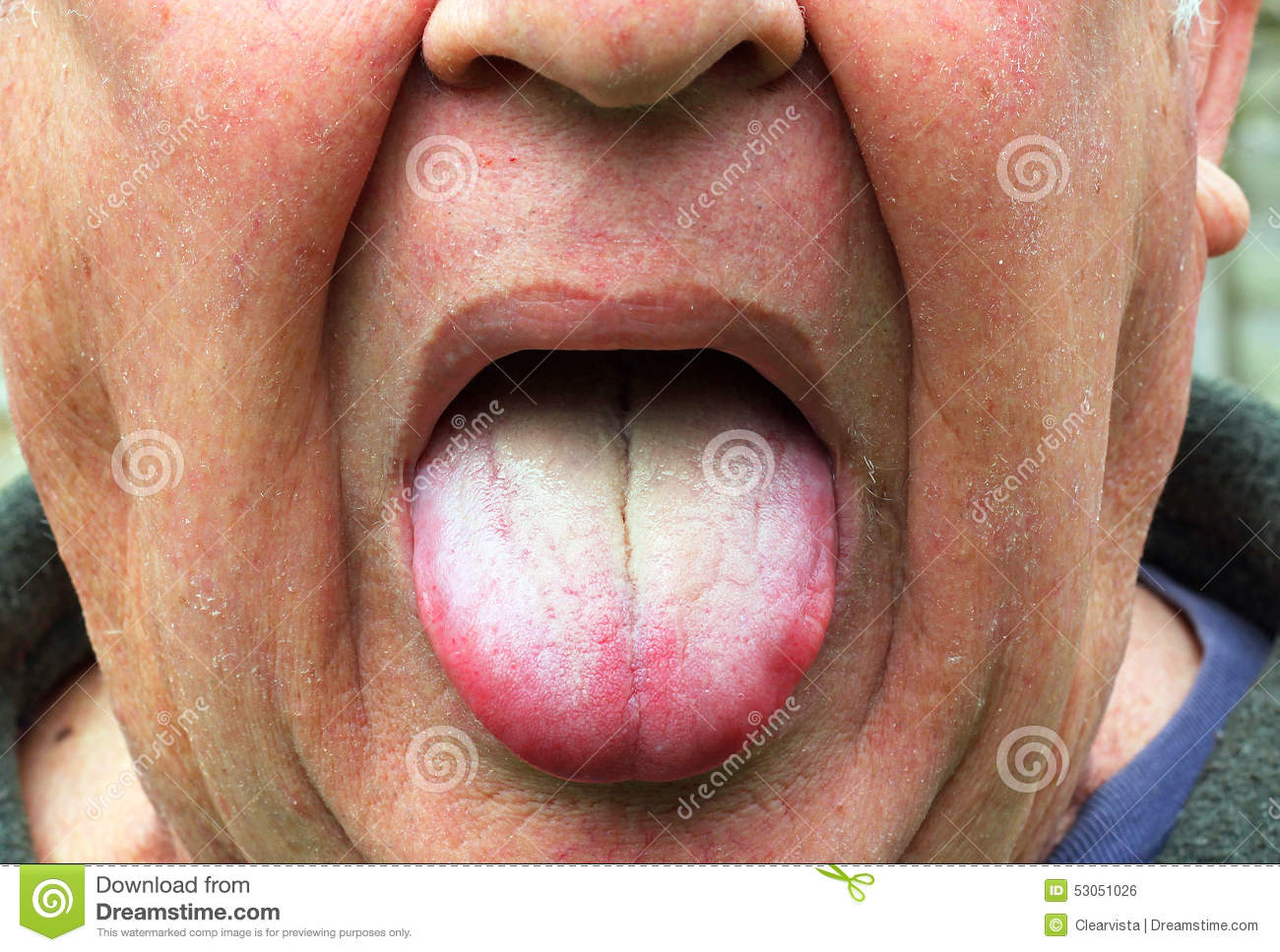 Sick Or Ill Man, Coated Yellow Tongue. Stock Photo - Image ...