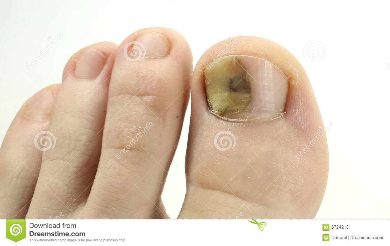 Sick Nail. Fungus Of Big Toe. Separation Of The Nail From The Nail ...