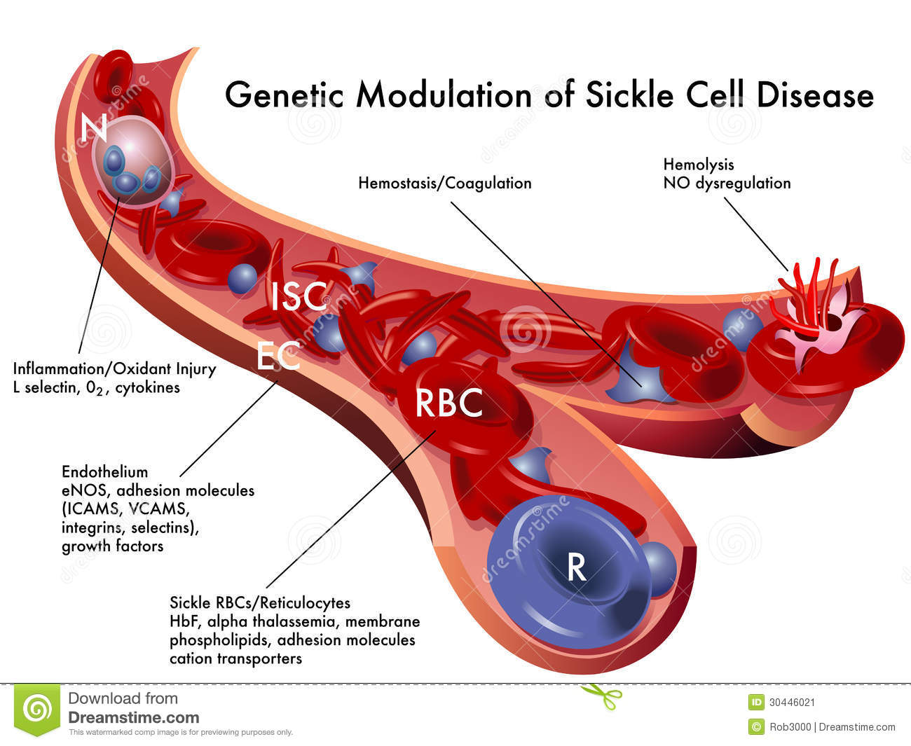 a research in the genetic disorder sickle cell disease Sickle cell disease definition sickle cell disease is an autosomal recessive blood disorder that can lead to anaemia it is caused by a mutation in the haemoglobin gene, which leads to deformation of red blood cells deformed red blood cells can obstruct small vessels and they are prone to destruction.