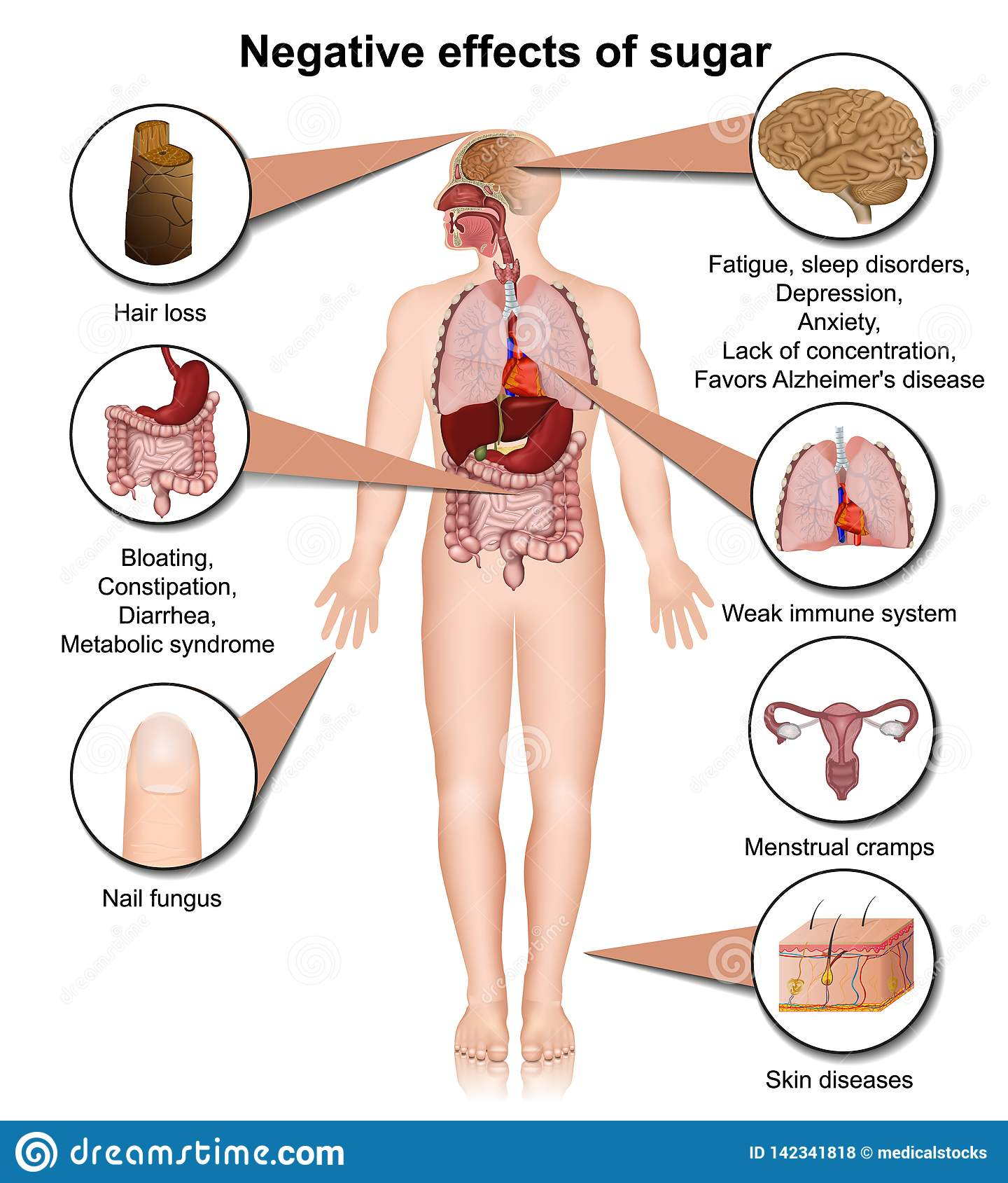 Side effects of sugar on the human body 3d medical  illustration