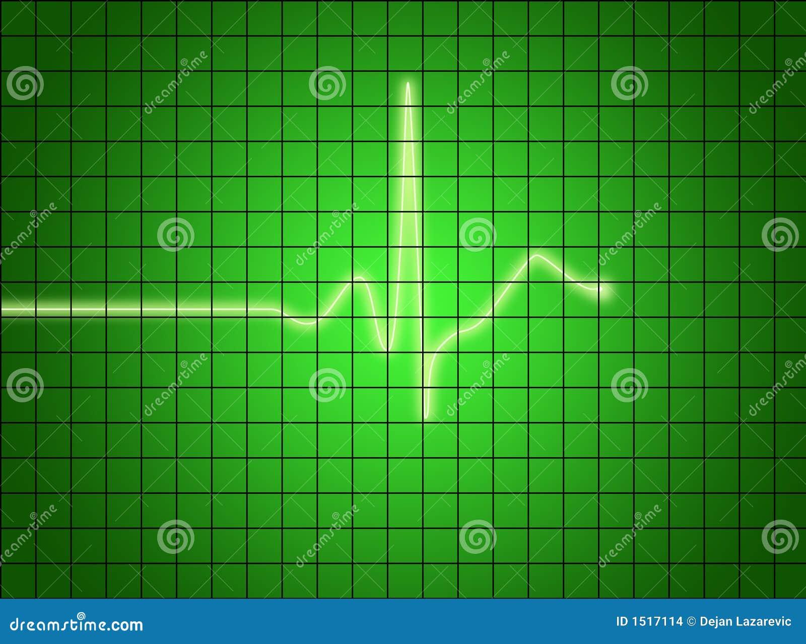 Signal d EKG