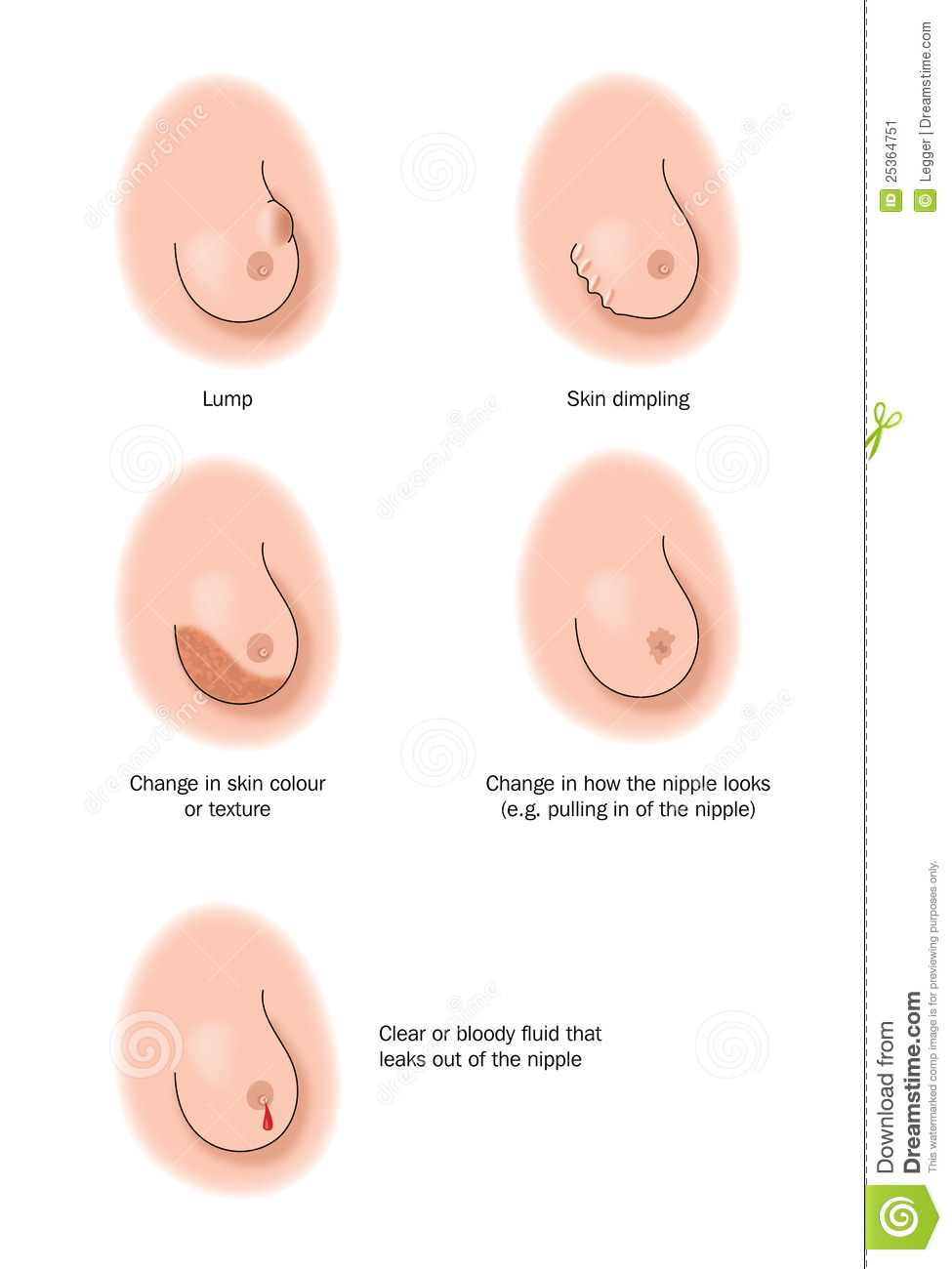 breast cancer symptoms dimpling pictures Quotes