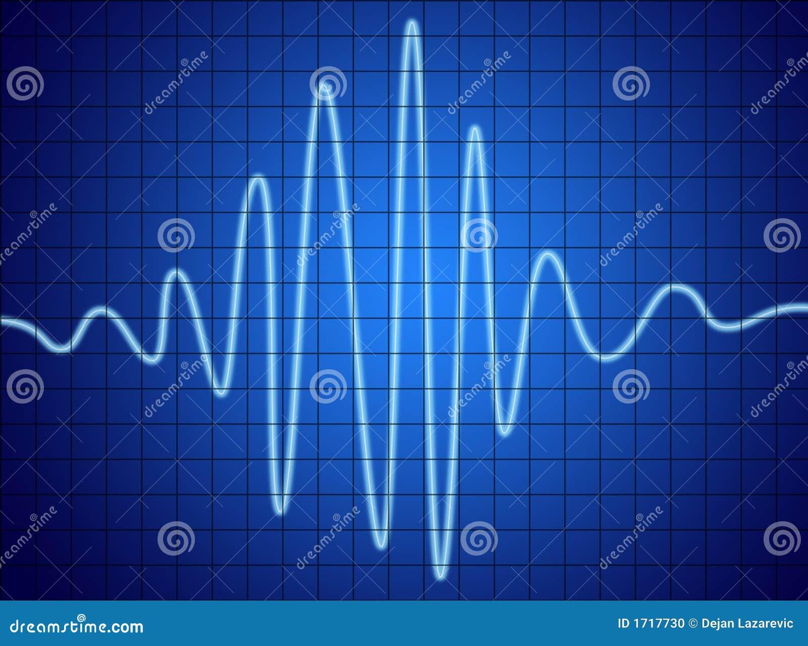 Sinal audio