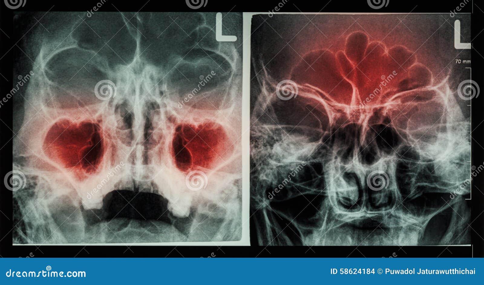 Sino paranasal de la radiografía de la película: muestre la sinusitis en el sino maxilar (dejó imagen), sino frontal (la imagen c