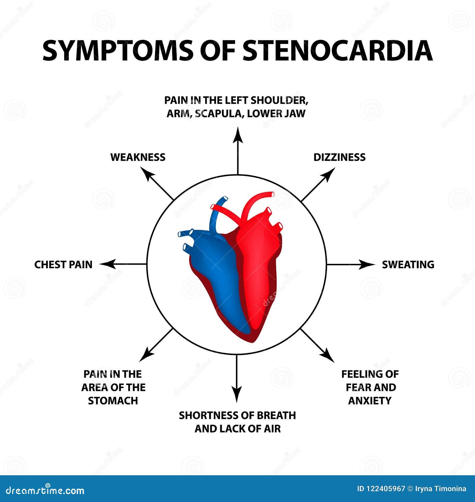 sintomas de amigdalitis quia coração