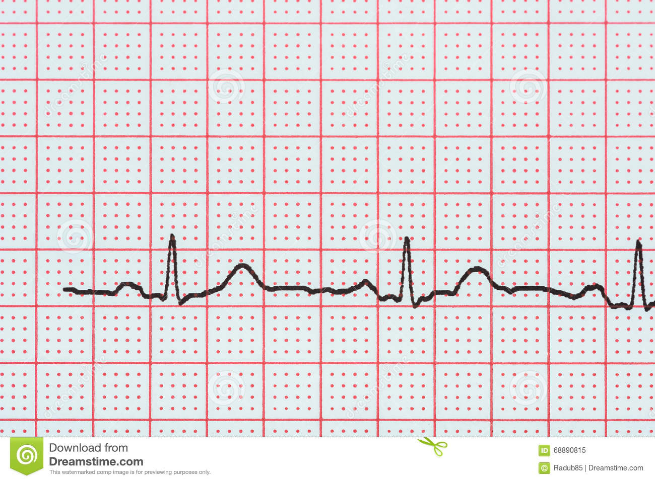 Sinus Heart Rhythm On Electrocardiogram Record Paper Showing