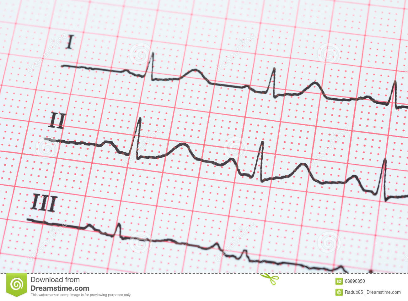 Normal Ecg Stock Photos Royalty Free Images Diagram Of Electrocardiogram Paper Public Domain Image Sinus Heart Rhythm On Record Showing