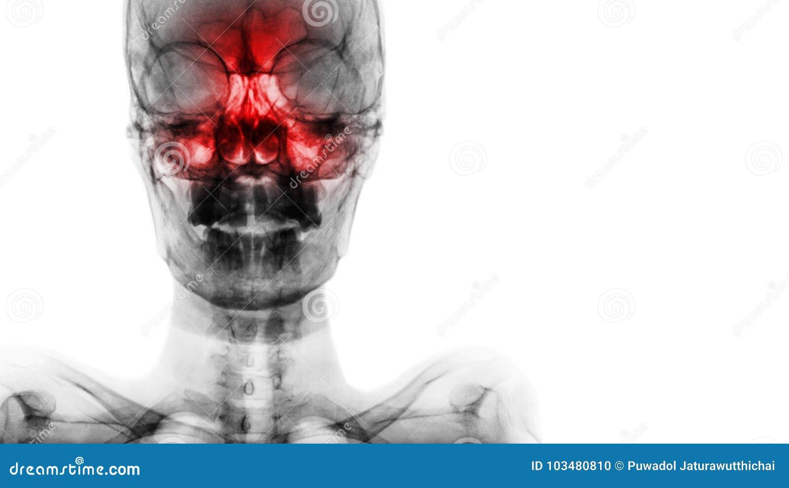 Sinusite au sinus frontal, ethmoïde, maxillaire Filmez le rayon X du crâne et masquez le secteur au côté droit