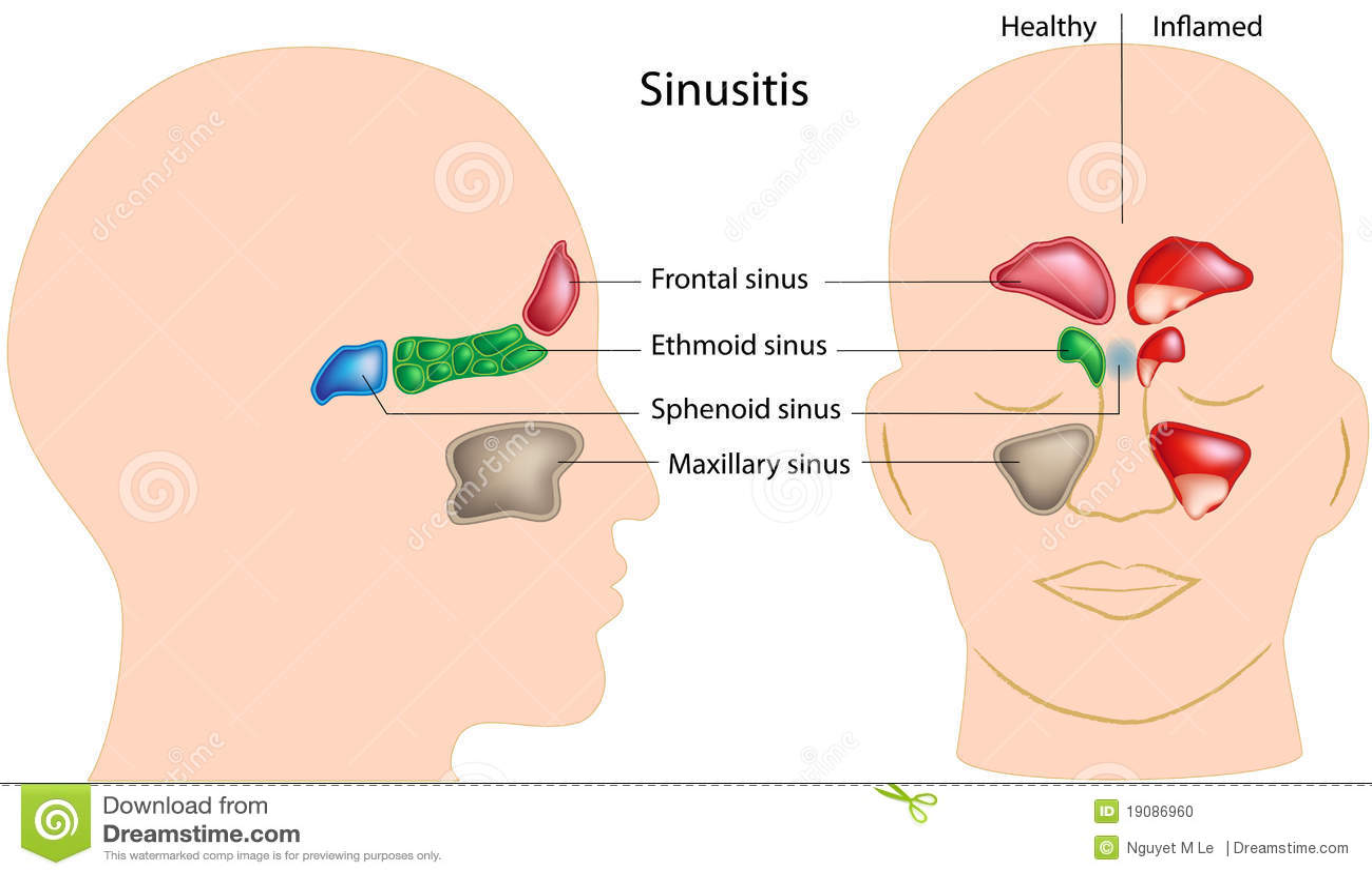 Sinusitis Stock Photo - Image: 19086960