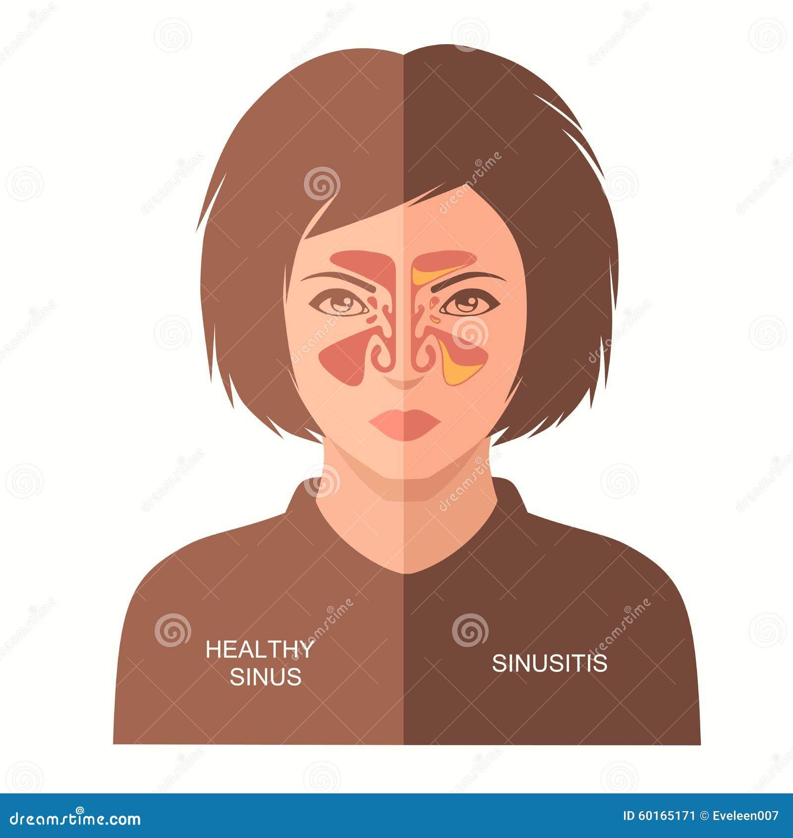 Sinusitis disease, stock vector. Illustration of healthcare - 60165171