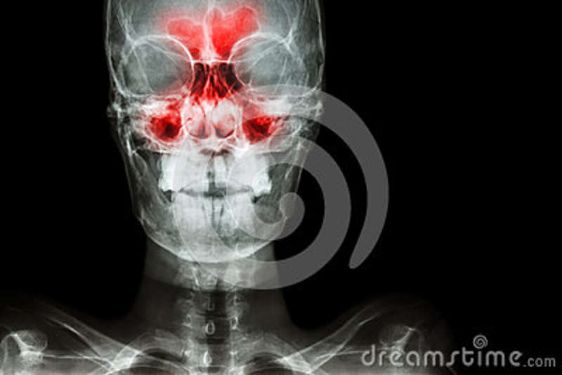 Sinusitis stock image. Image of ethmoid, front, cervical - 79229331