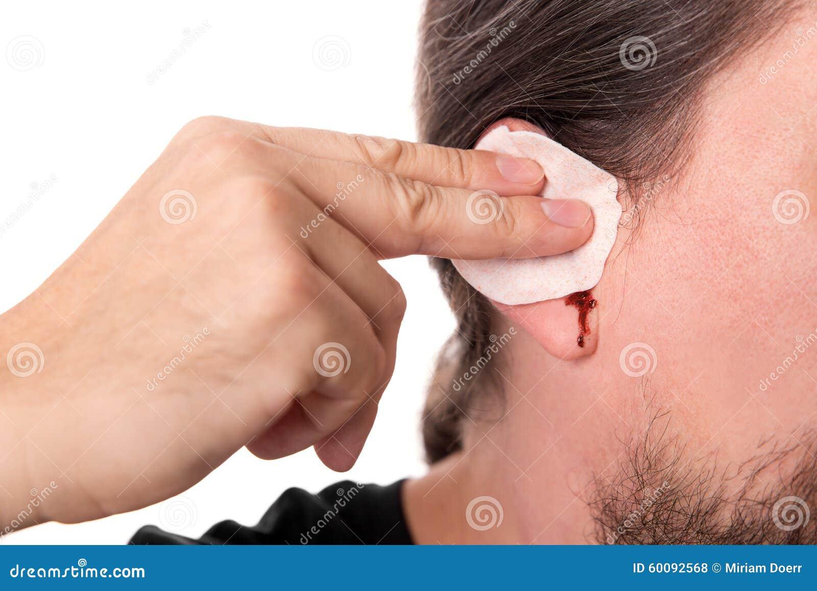 Sirva tener sangría del oído, aislada en blanco, otitis media del concepto