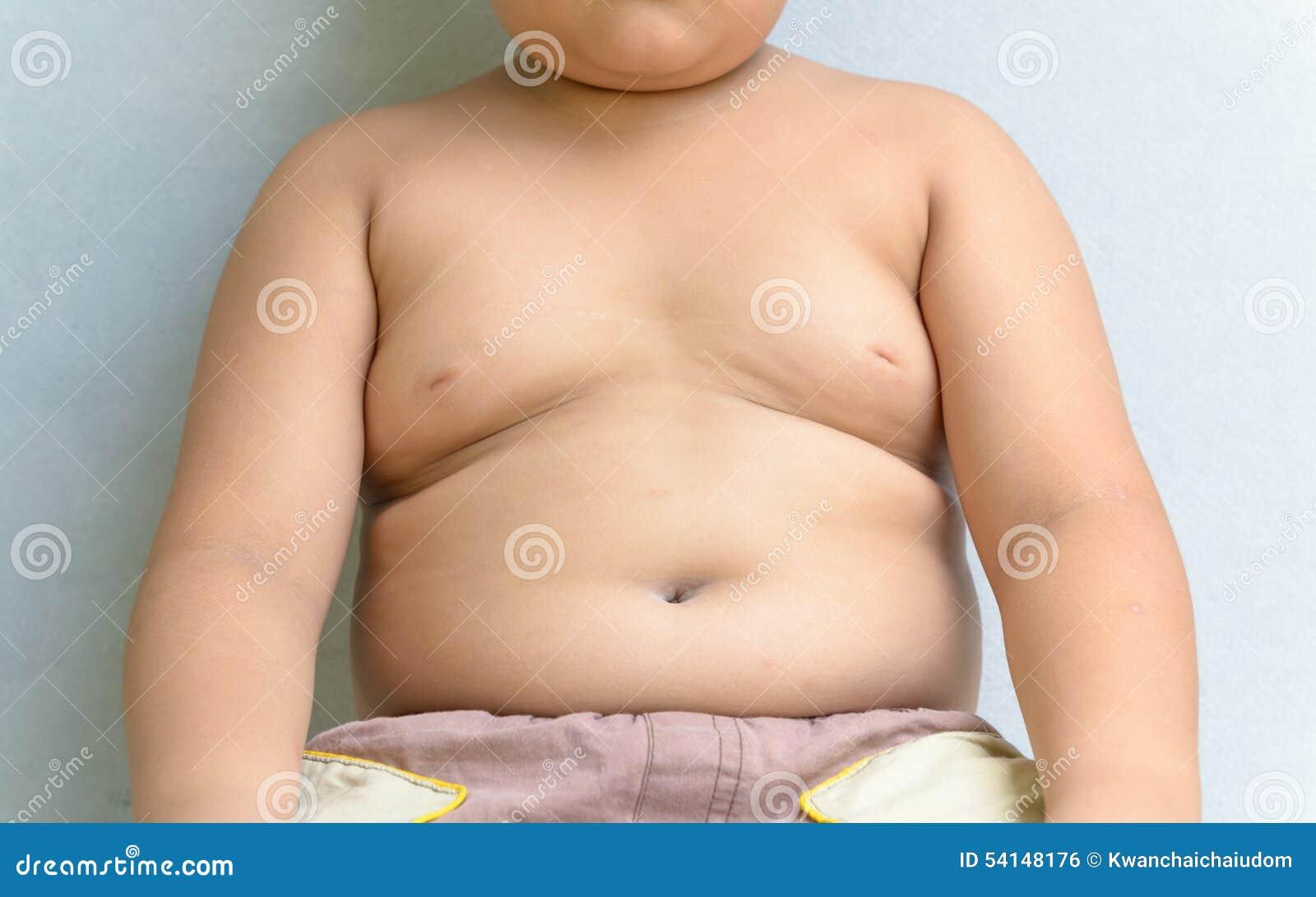 Ожирение у детей: причины, таблица по возрасту, лечение, последствия 48