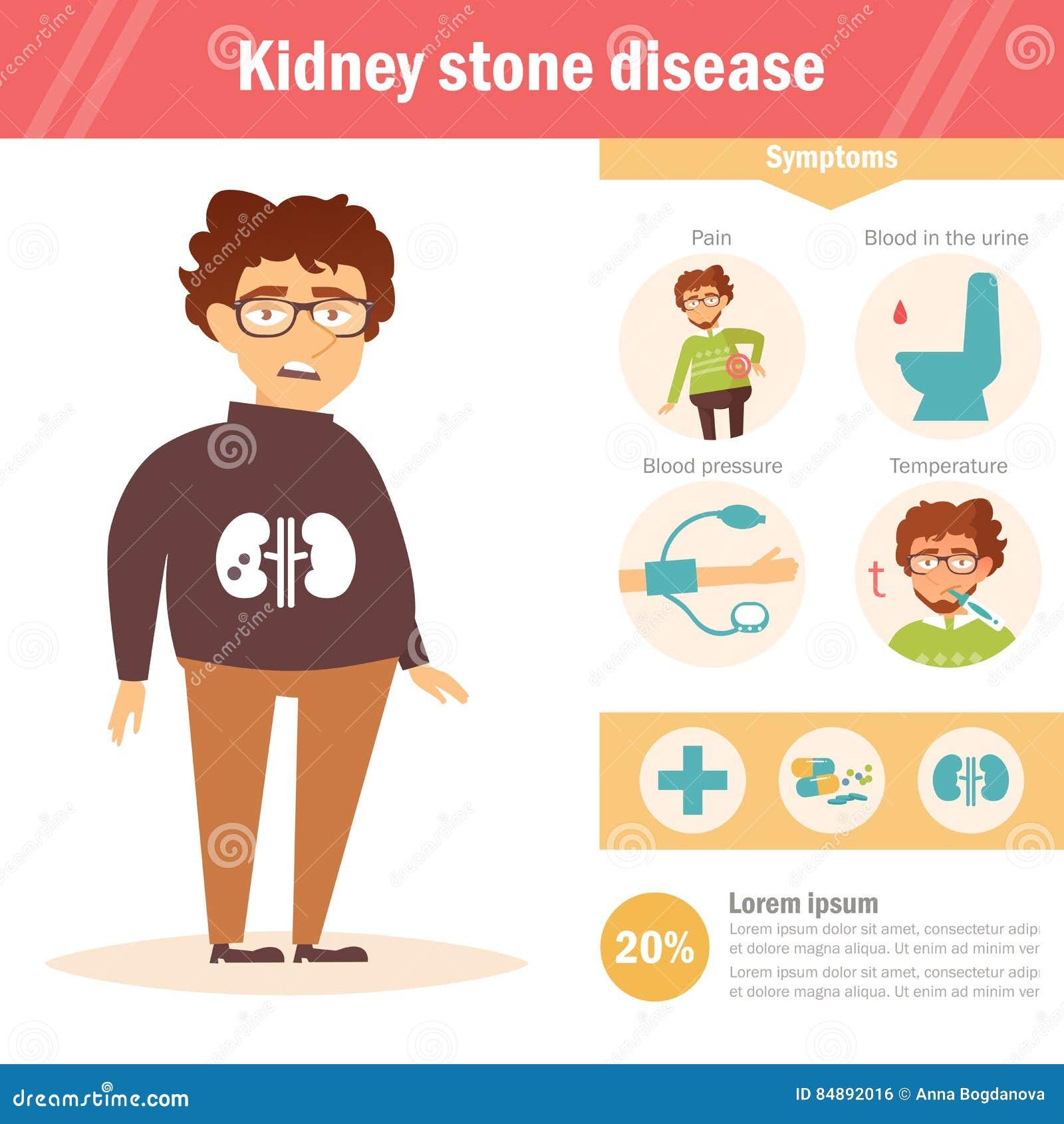 Sjukdom för njuresten Infographics vektor cartoon
