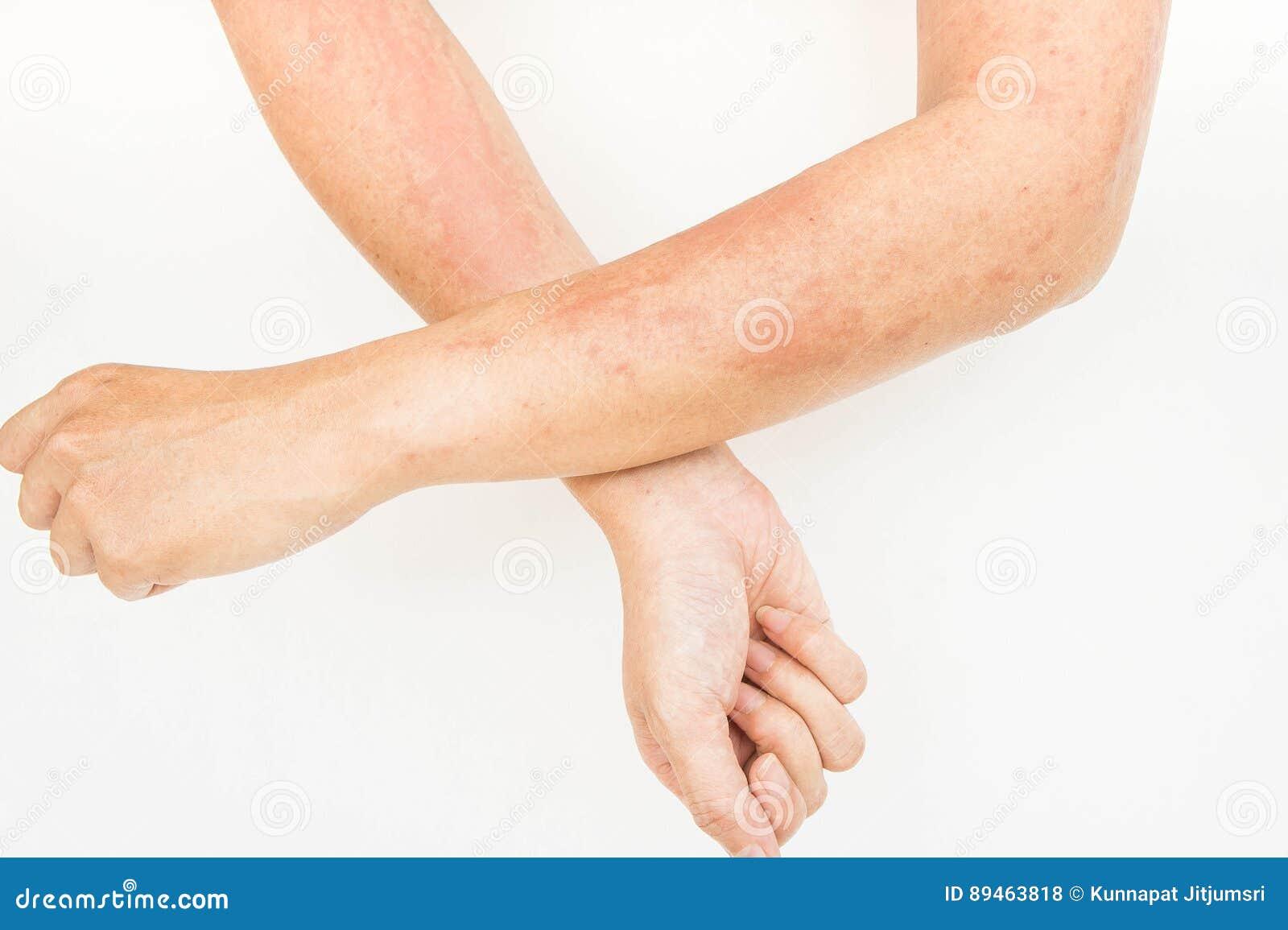 Skór wysypki, alergii kontaktowy dermatitis, alergiczny substancje chemiczne