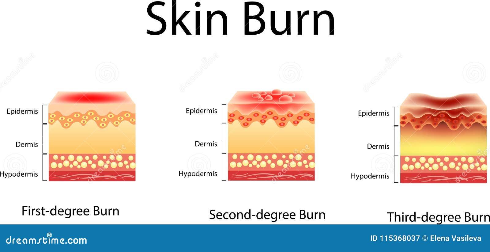 Skóra oparzenie Trzy stopnia oparzenie typ uraz skóra, Wektorowa ilustracja