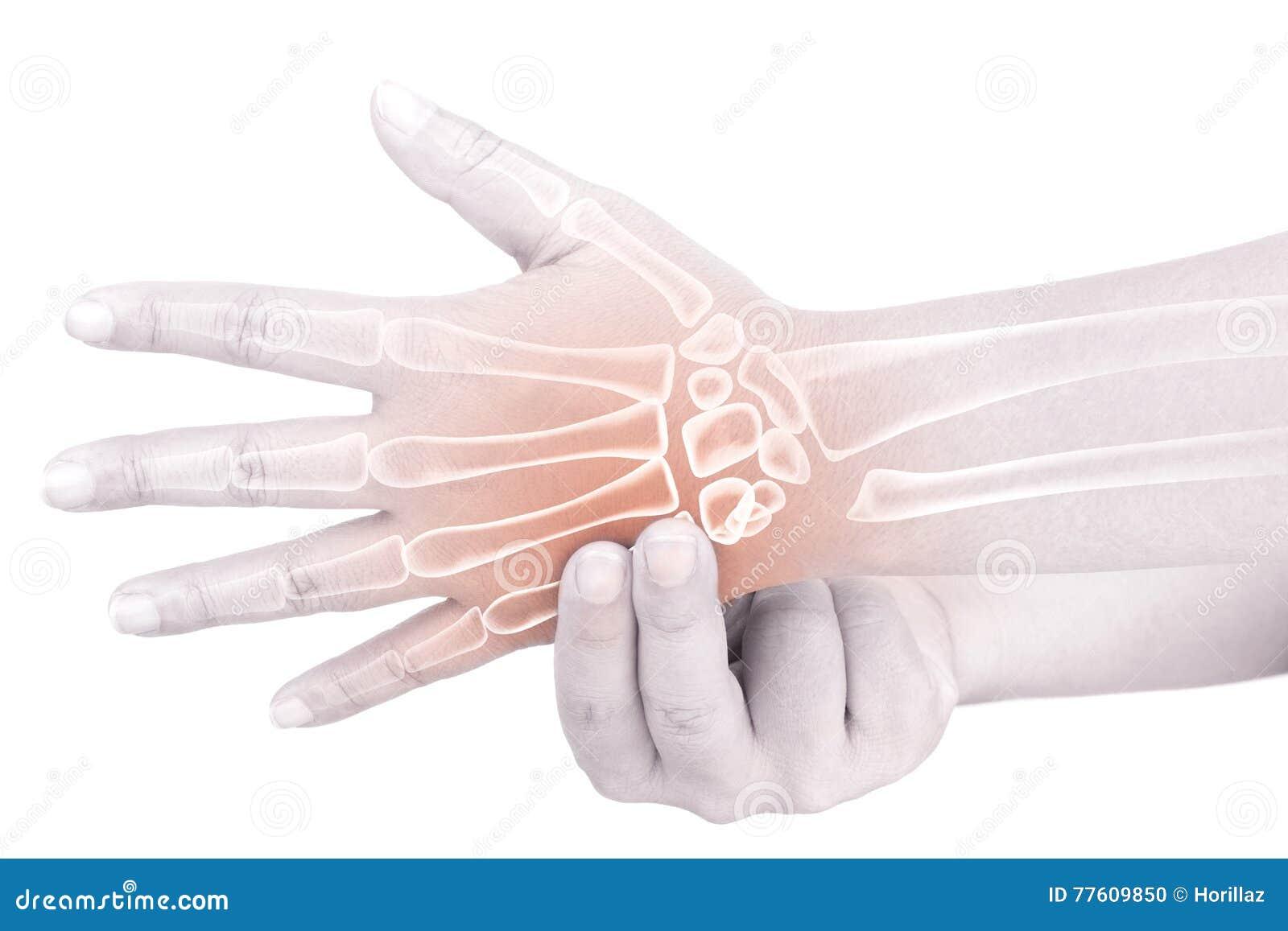 Skada för handben