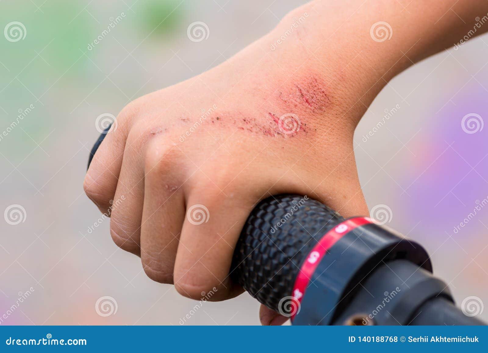 Skada, när köra en cykel