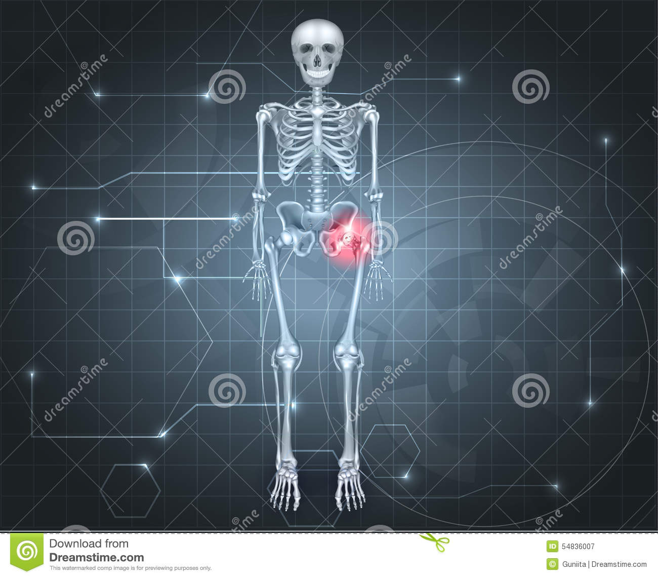Skeleton With Hip Joint Pain Stock Vector - Illustration of graphic ...